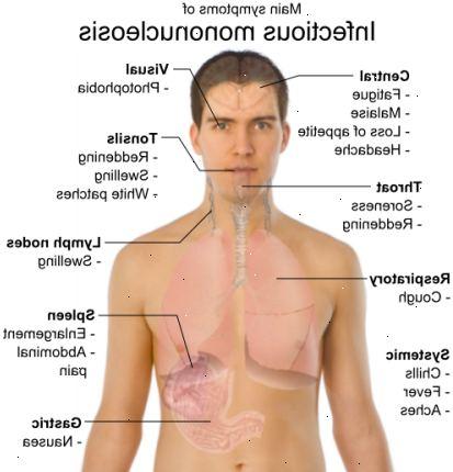 epstein barr symptomer